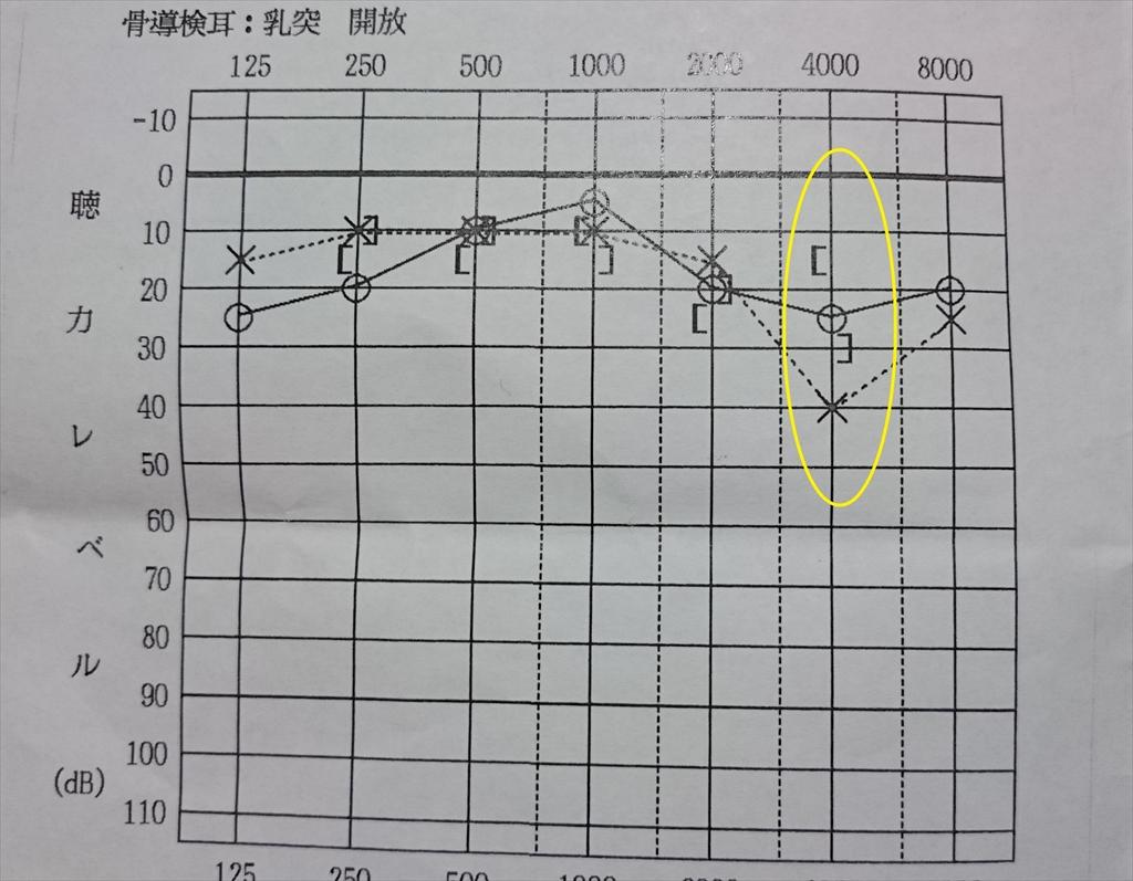 ある音域だけ左耳の聴力が低い
